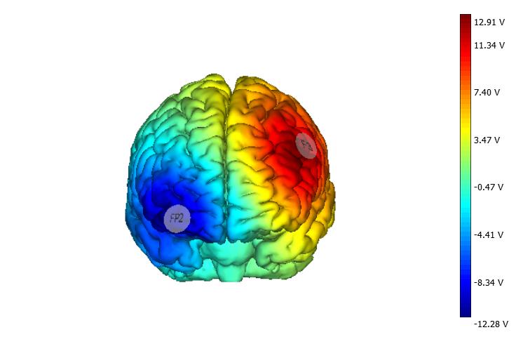 Tratamiento innovador para la fibromialgia y el dolor crónico mediante neuromodulación (tDCS)